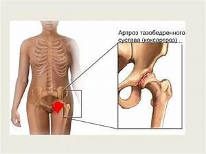 Симптомы артроз плюсневого сустава боль