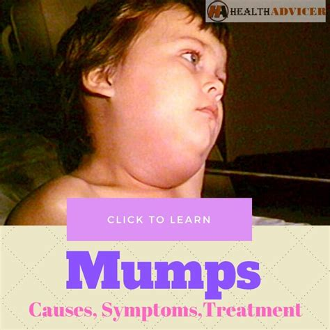 Mumps - Causes, Picture, Symptoms and Treatment