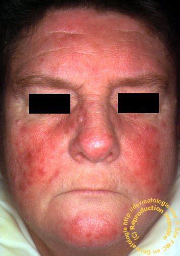 dermite du si鑒e dermatologie rosacée rosacea pustules visage joues metronidazole cycline acne