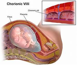Chorionic Villi  Placental Villi