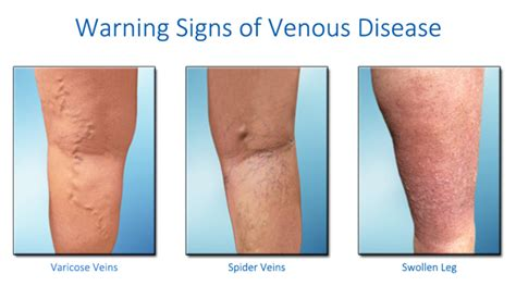 Vascular Screening In Tampa Fl Nationally Accredited Vein. Concept Map Signs. Fake Signs Of Stroke. School Name Signs Of Stroke. Decreased Signs. Physician Signs. November 4th Signs Of Stroke. Bloxburg Signs. Etched Wood Signs Of Stroke
