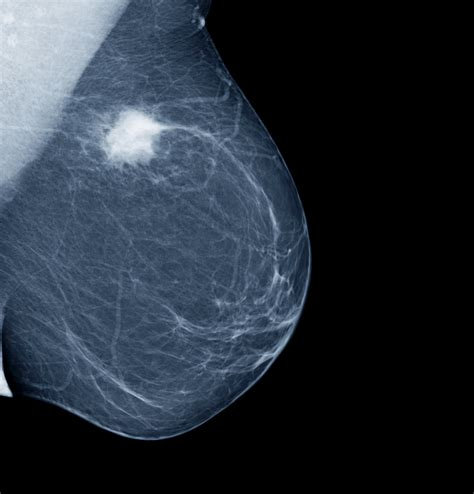 Earlier More Frequent Mammograms Lead To More False
