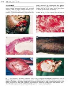 Nevirapine Toxicity. Yes, that's the result of an Aids drug. Yes, we ... Nevirapine