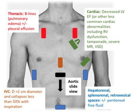 emDOCs.net – Emergency Medicine EducationDiagnosing ...