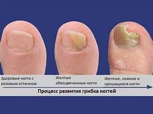 Средство от грибка ногтей на ногах из тайланда
