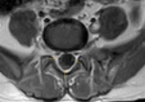 Arachnoiditis-MRI - Sumer's Radiology Blog