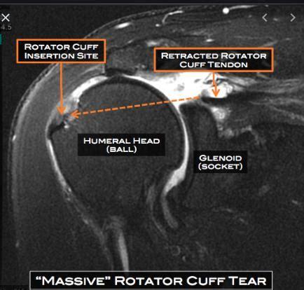 "Orthopedic Surgeon Expert Witness: When an ""abnormal"" MRI ..."