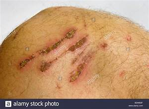 Skin Abrasion | www.pixshark.com - Images Galleries With A ...