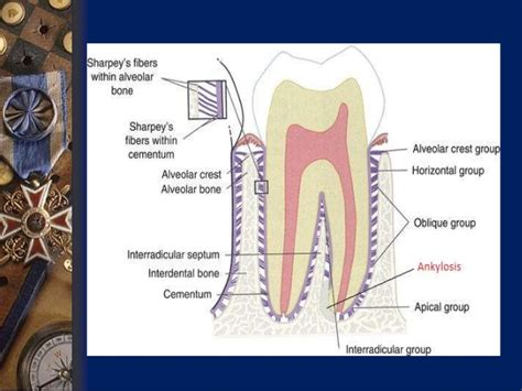 Tooth Bone Diagram by Submerged Tooth