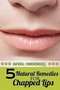 Five Natural Remedies For Chapped Lips U2019 Natural Home