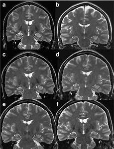 Serial brain 18FDG-PET in anti-AMPA receptor limbic ...