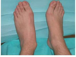Clinical Examination Revealed A Left Limb With Rigid