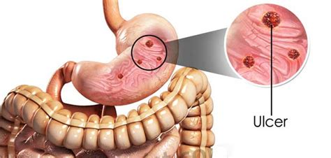 Peptic Ulcer Symptoms  What All You Should Know About. Minneapolis Farmers Market Dont Throw It Away. Replace Broken Window Glass Ltc Wichita Ks. Orion Insurance Company Outsource Blog Writing. Sigma Nu University Of Alabama. Graduate Programs That Don T Require Gre. Lsat Personal Statement Samples. App Development Companies Los Angeles. Moving Companies Maryland Denture Vs Implant