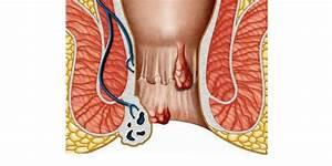 Средства лфк при гипертонической болезни