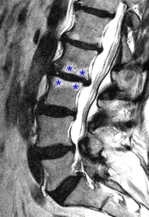 vertebral endplate