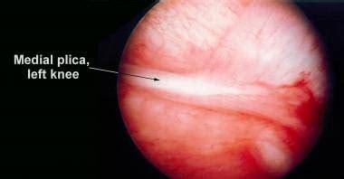 Medial Synovial Plica Irritation Workup: Imaging Studies, Procedures