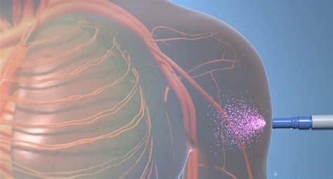fda approves    migraine drugs