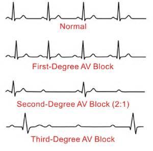 First-Degree Av Heart Block