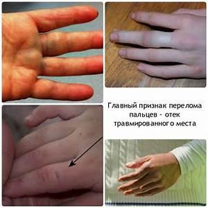 Болит сустав пальца на руке что делать в домашних условиях
