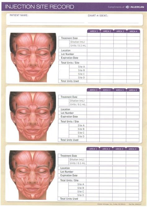 related image botox injection sites botox fillers