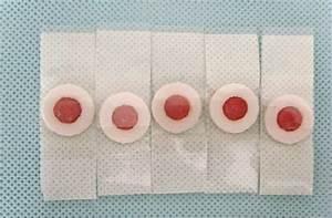 Лечение бородавок аппаратом сургитрон