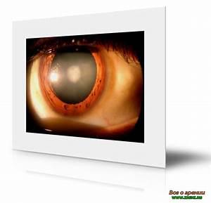 Схемы лечения артериальной гипертензии для врачей