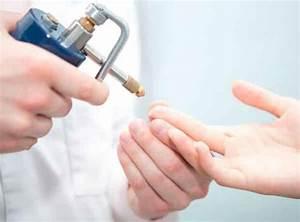Необычные способы лечения грибка ногтей