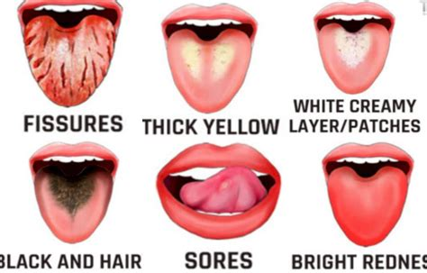 tongue   indications   health