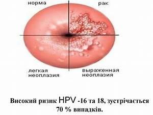 Вирус папилломы человека лечение изнутри