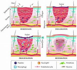 The Four Stages Of Wound Repair