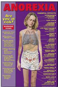 Identifying Anorexia Signs - Do You Know What To Look For?  Body Weight Anorexia Nervosa