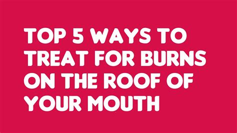 Top 5 Ways To Treat For Burns On The Roof Of Your Mouth