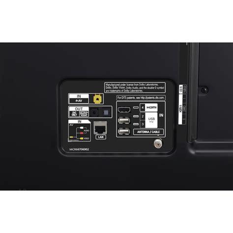 lg electronics sj    ultra hd smart led tv