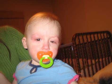 Nora Thomas Short Bowel Syndrome Survivor Blog