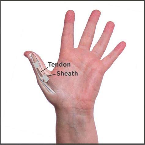 trigger thumb  treatment symptoms