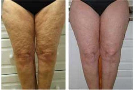 chinese herbs  cellulite general center