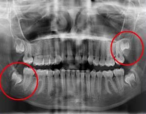 Symptome Dent De Sagesse : interventions de chirurgie buccale et traitement d 39 orthodontie ~ Maxctalentgroup.com Avis de Voitures
