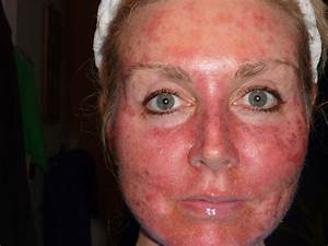Sunburns on Face Pictures – 8 Photos & Images / illnessee.com