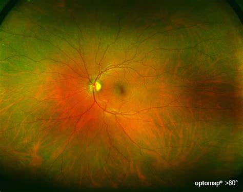optomap  wide view digital eye exam   dilation