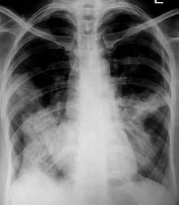 Chest Radiograph Reveals Multi