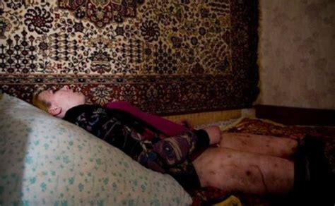 flesh rotting russian drug surfaces    sick chirpse