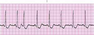 EKG dysrhythmias at University of Hawaii - Manoa - StudyBlue