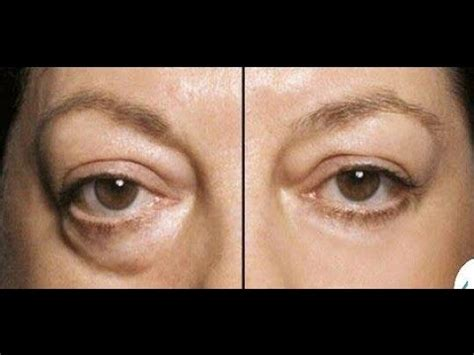 AS SEEN ON TV: Instant Wrinkle Appearance Reducer Sweeping