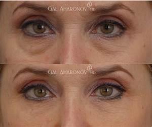 best filler for under eye wrinkles