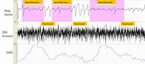 Respiratory Events And Arousals In Psg Recording