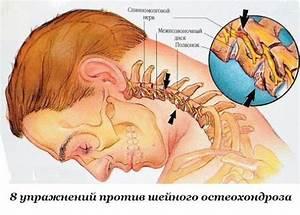 Лучшие упражнения от остеохондроза шейного отдела