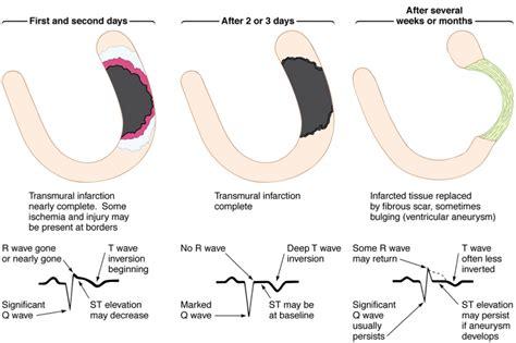 inferior  wave   pre op ekg cardiac health