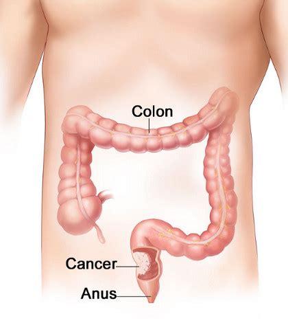 Intestinul gros anatomie