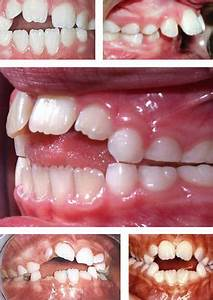 Does My Child Need Braces Dental Quarters