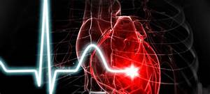 Heart Disease And Stroke Deaths Decline Slightly  New